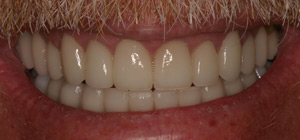 implants dentist, teeth cleaning, full mouth rejuvenation, teeth bleaching professional, makeover dentistry, full dental implants, replacement teeth, cosmetic family dentistry, teeth bleaching whitening, dental implants