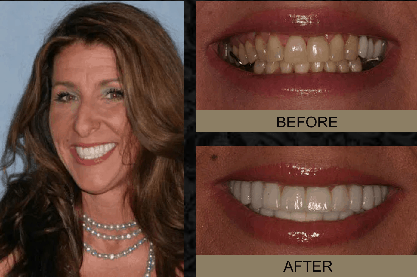 Dana - Before and After Smile