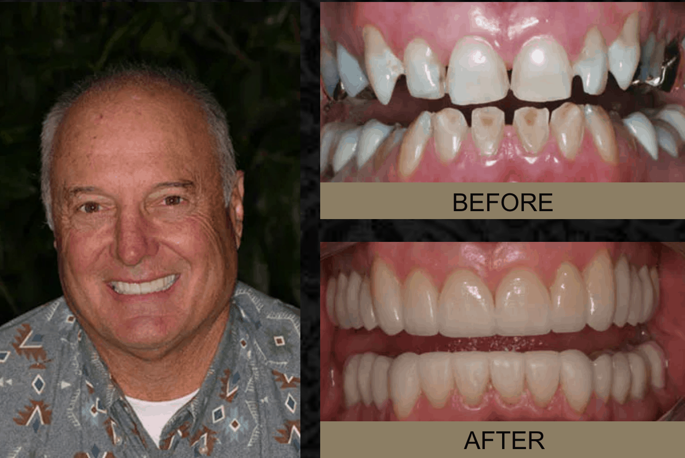 Merritt - Before and After Smile