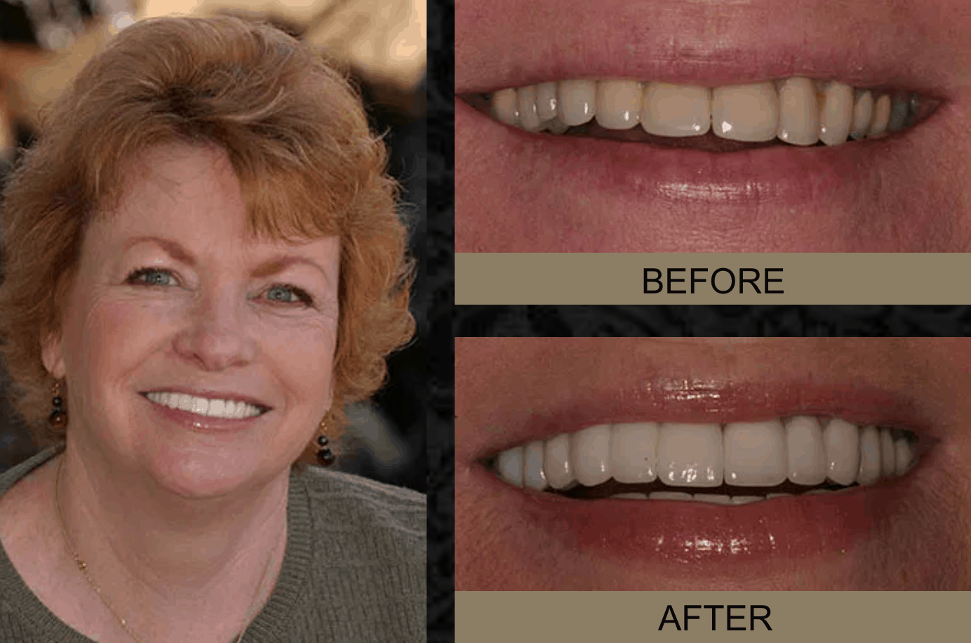 Patti - Before and After Smile