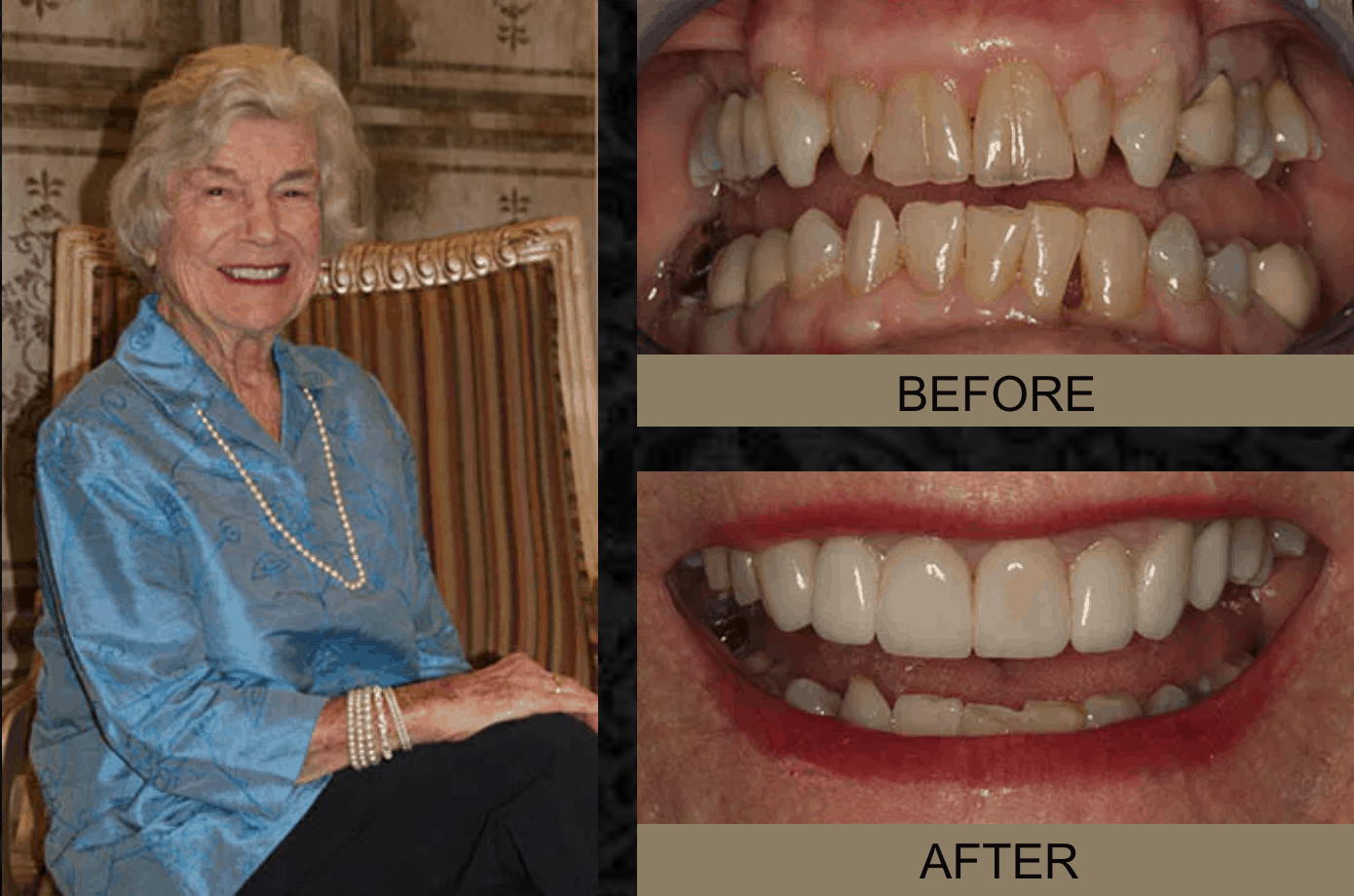 Ruth - Before and After Smile